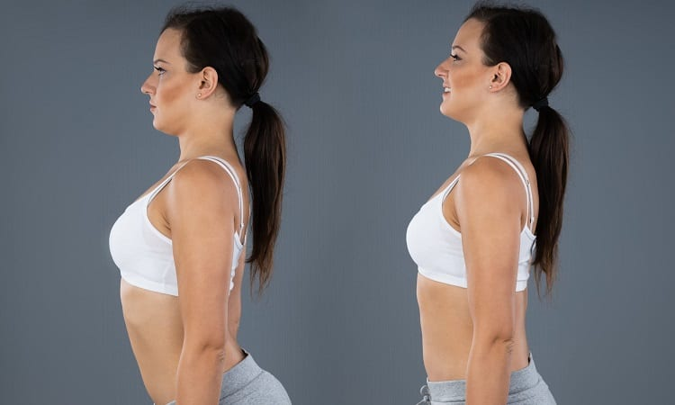 How To Fix Lordosis Posture