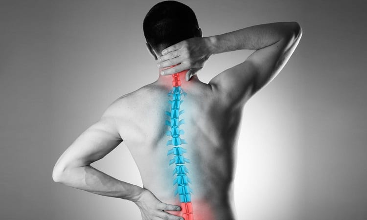 Can You Get Scoliosis From Bad Posture